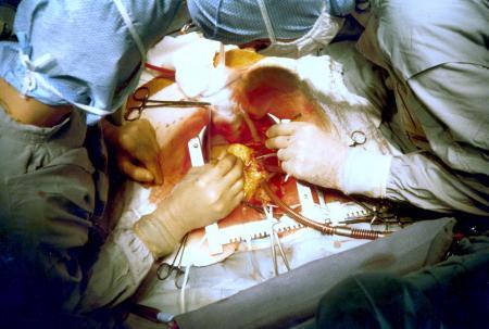 Операции на грудной клетке в кардиологии